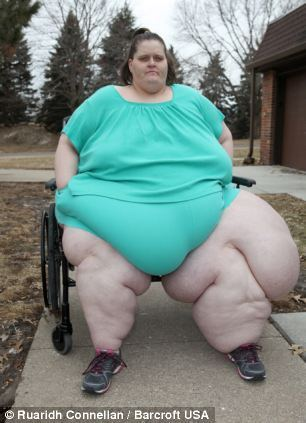 alive Fattest woman